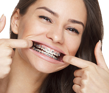 Dr. Edward Fritz Orthodontics Can adults have clear braces completed in the Mesa area?