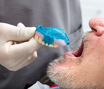 Dr. Edward Fritz Dentures Where to find complete dentures near me in Gilbert
