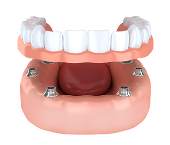 Dr. Edward Fritz Dentures Mesa area residents ask about the cost of partial dentures