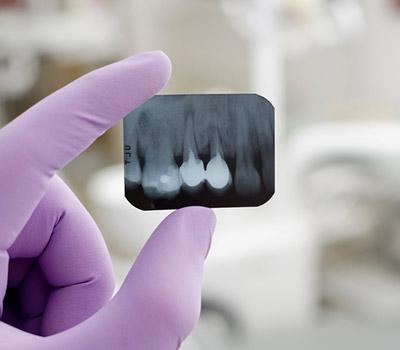 Dr. Edward Fritz Dental Implants The benefits of dental implants in Mesa