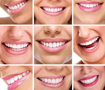 Dr. Edward Fritz Dr. Edward Fritz offers tips for keeping your teeth white in Mesa, AZ