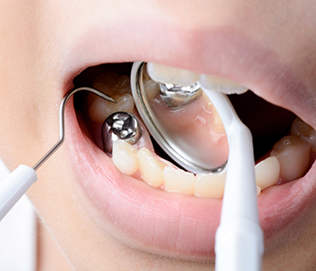 New Health Dental mercury free dentistry