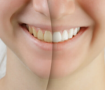 Dr. Edward Fritz Teeth Whitening Patients in the Mesa area look for a cosmetic dentist for teeth whitening
