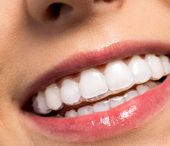 Dr. Edward Fritz Orthodontics Orthodontics can give you a beautiful and healthy smile in Mesa