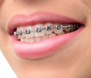 Dr. Edward Fritz Orthodontics What is the quickest way to straighten teeth near me in the Gilbert area?