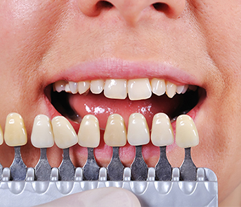 Dr. Edward Fritz Porcelain Veneers Mesa area residents ask about the cost of porcelain veneers