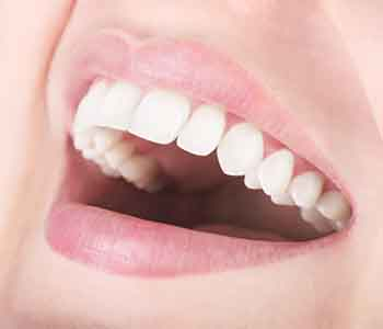 Reviews for Laser Gum Surgery Mesa