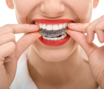 Dr. Edward Fritz Orthodontics Dental Orthodontics Mesa – Orthodontic Treatment