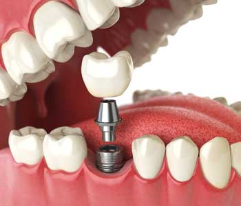 Solution for Missing Teeth