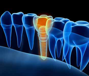 Dr. Edward Fritz Dental Implants Dentist in Mesa, AZ proudly offers tooth replacement services with dental implants