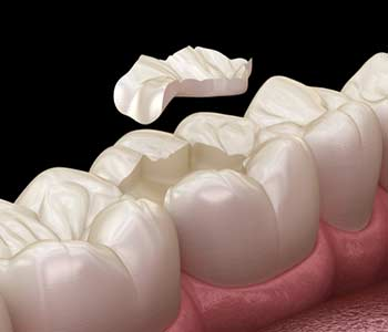 What Are Porcelain Fillings in Mesa area