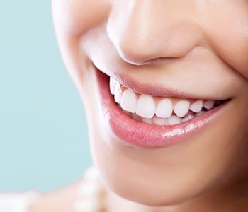 Benefits of dental veneers in Mesa, AZ area