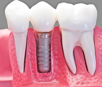 Best Dental Implants Treatment provider in Mesa, AZ area