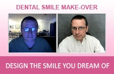 Dentist Mesa - Dental Smile makeover Application