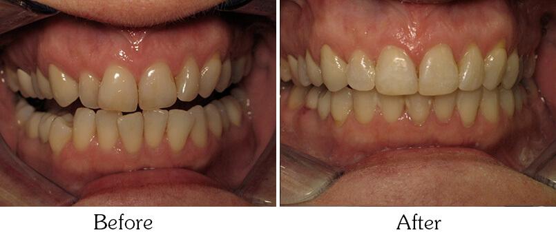 Orthodontic Smile Gallery Mesa - before Orthodontic Treatments