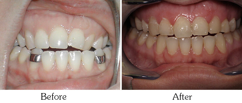 Orthodontic Smile Gallery Mesa - after Orthodontic Treatments