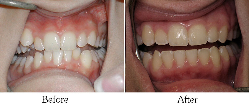 Orthodontic Smile Gallery Mesa - patient before Orthodontic Treatments