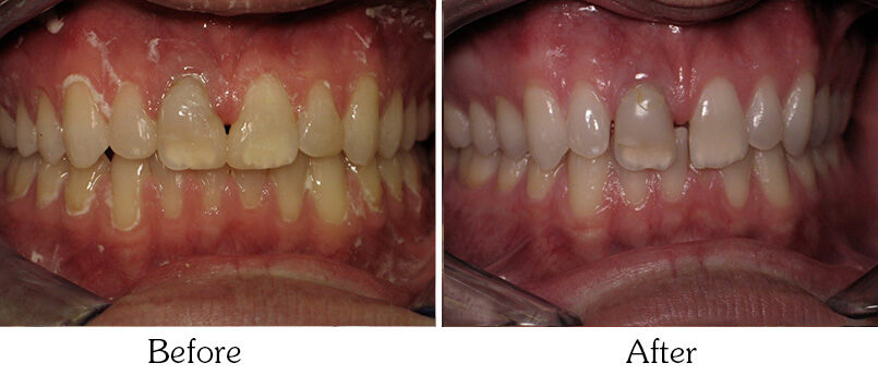 Orthodontic Smile Gallery Mesa - patient after Orthodontic Treatments