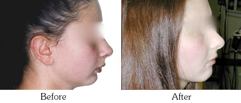 Orthodontic Smile Gallery Mesa - Orthodontic Treatments before