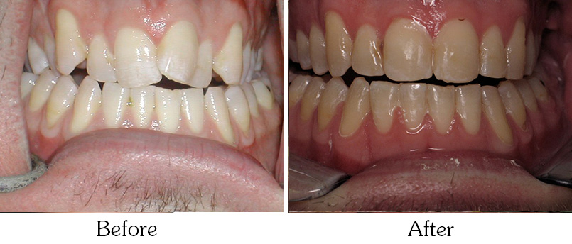 Orthodontic Smile Gallery Mesa - Orthodontic Treatments after