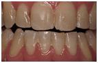 Orthodontics Mesa - after Orthodontic treatments