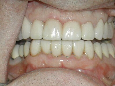 Teeth Whitening Mesa - after Teeth Whitening treatments