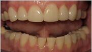 Porcelain Veneers Mesa - after porcelain dental fillings treatments