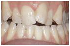 Orthodontics Mesa - before Orthodontic treatments