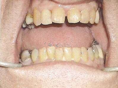 Teeth Whitening Mesa - before Teeth Whitening treatments