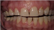 Porcelain Veneers Mesa - before porcelain dental fillings treatments