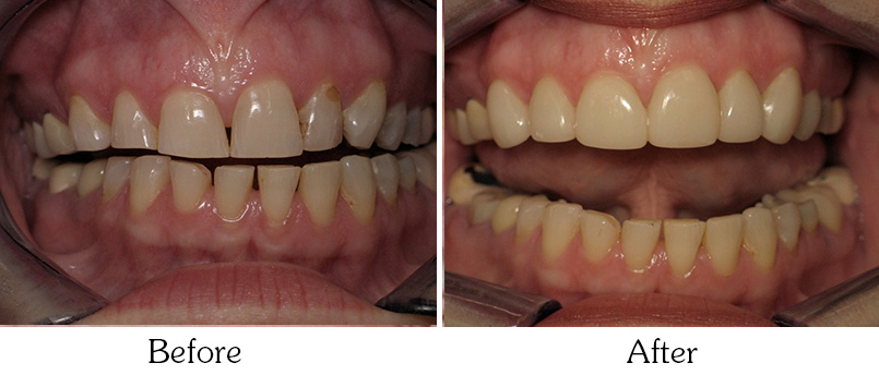 Laser Gum Disease Treatment Mesa  Periodontal Disease. Multimeter Resistance Measurement. Cleaning Service Cambridge Lobster Supper Pei. Whole Life Asset Management What Is Bonding. Short Code Text Message Ipad Merchant Services. Carpet Cleaners Arlington Tx. Comcast Fort Campbell Ky Cheap Duct Cleaning. Cnc Programming Courses What Drug Are You Quiz. Medical Insurance In Ca San Diego Boat Movers