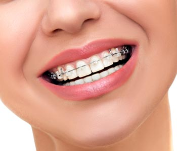 Best Orthodontics Treatment provider in Mesa, AZ area