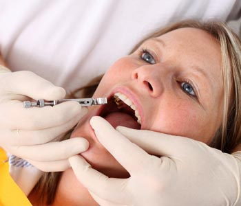 Best Porcelain Tooth Fillings provider in Mesa, AZ area